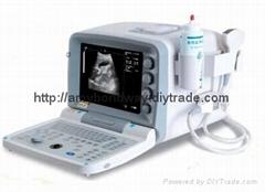 B型超聲診斷儀