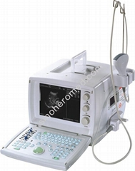 S880 portable Ultrasound Scanner digital type
