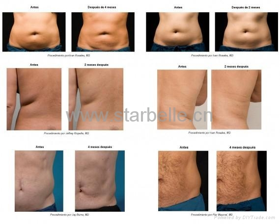 What The Crack Is That additionally 32594586472 also Derma Roller 540 Needle En 2 further 1412837 besides Fat Dissolving Injections. on body cavitation