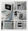 DW360 portable convex ultrasound scanner
