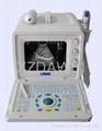 DW3101A ultrasound scanner 3