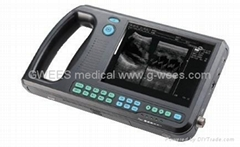 Digital PalmSmart Ultrasound Scanner--GWEES