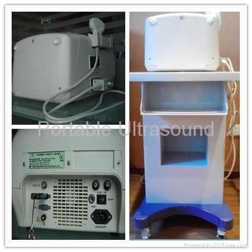 Digital Portable Ultrasound Scanner 2