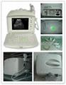 Digital Portable Ultrasound Scanner 3