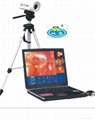 Laptop Digital Electronic Colposcope