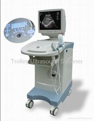 Full-digital Trolley-type Ultrasonic Scanner XK/21353plus