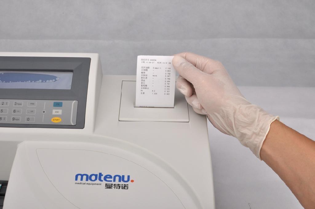 Fast urine analyzer 2