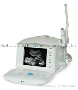 portable Ultrasound Scanner Ultrasound Diagnostic Equipment 1