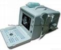portable Ultrasound Scanner Ultrasound Diagnostic Equipment 2