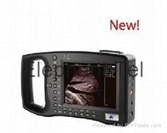 Palm Ultrasound Scanner