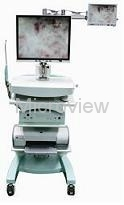 Endoscopic System for MTP
