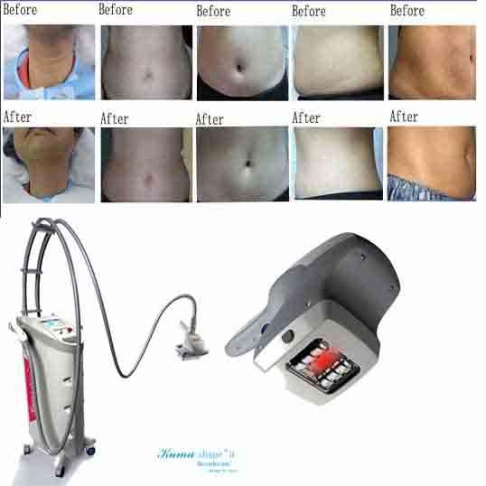 cellulite machine treatment