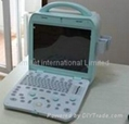 Portable Ultrasound system color doppler scanner 3