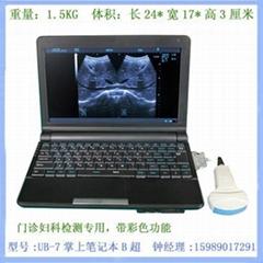UB-7笔记本式孕妇检测
