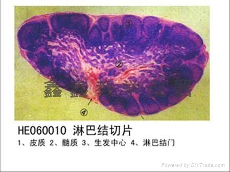 病理切片 1