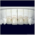 Dental PFM/Porcelain fused to metal crown and bridge(Cobalt-Chrome alloy)
