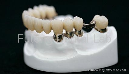 Telescope crown with partial removable acrylic denture product