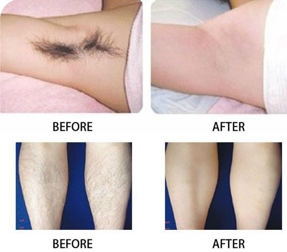 Best laser hair removal technology / Massage palm coast fl