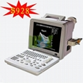 Hot selling portable ultrasound