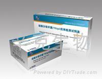 結核分枝桿菌(TB)IgG抗體檢測試劑盒(膠體金法)