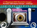 1.3M Pixels Portable Digital PC USB Iriscope