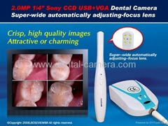 "2.0 Mega Pixels 1/4"" Sony CCD USB+VGA Dental Intraoral Camera"