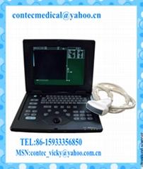 Palmsize Medical Ultrasound scanner