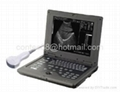 Palmsize Medical Ultrasound scanner  2