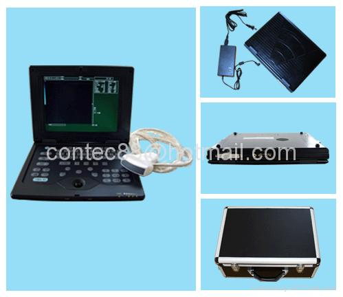 Palmsize Medical Ultrasound scanner  4