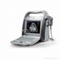 Color doppler ultrasound scanner