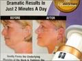 美容新品 下巴美容器 臉部美容儀 消除雙下巴按摩器  3