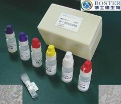 地高辛随机物标记和检测试剂盒