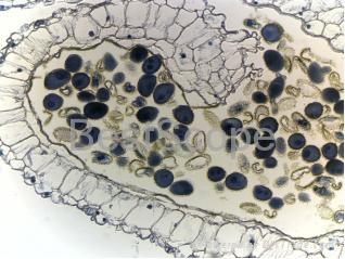 BestScope BLM-220 LCD Digital Biological Microscope 3