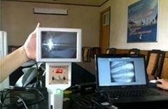 便携式X光机液晶显示器高清能透视X光机