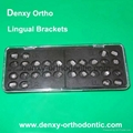 Orthodontic Lingual bracket Lingual braces Dental