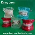 Metal bracket Ceramic bracket model Teeth Model Dental models Orthodontic model