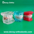 Metal bracket  model Teeth Model Dental model Orthodontic accessory