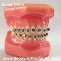 Metal self ligating bracket dental self