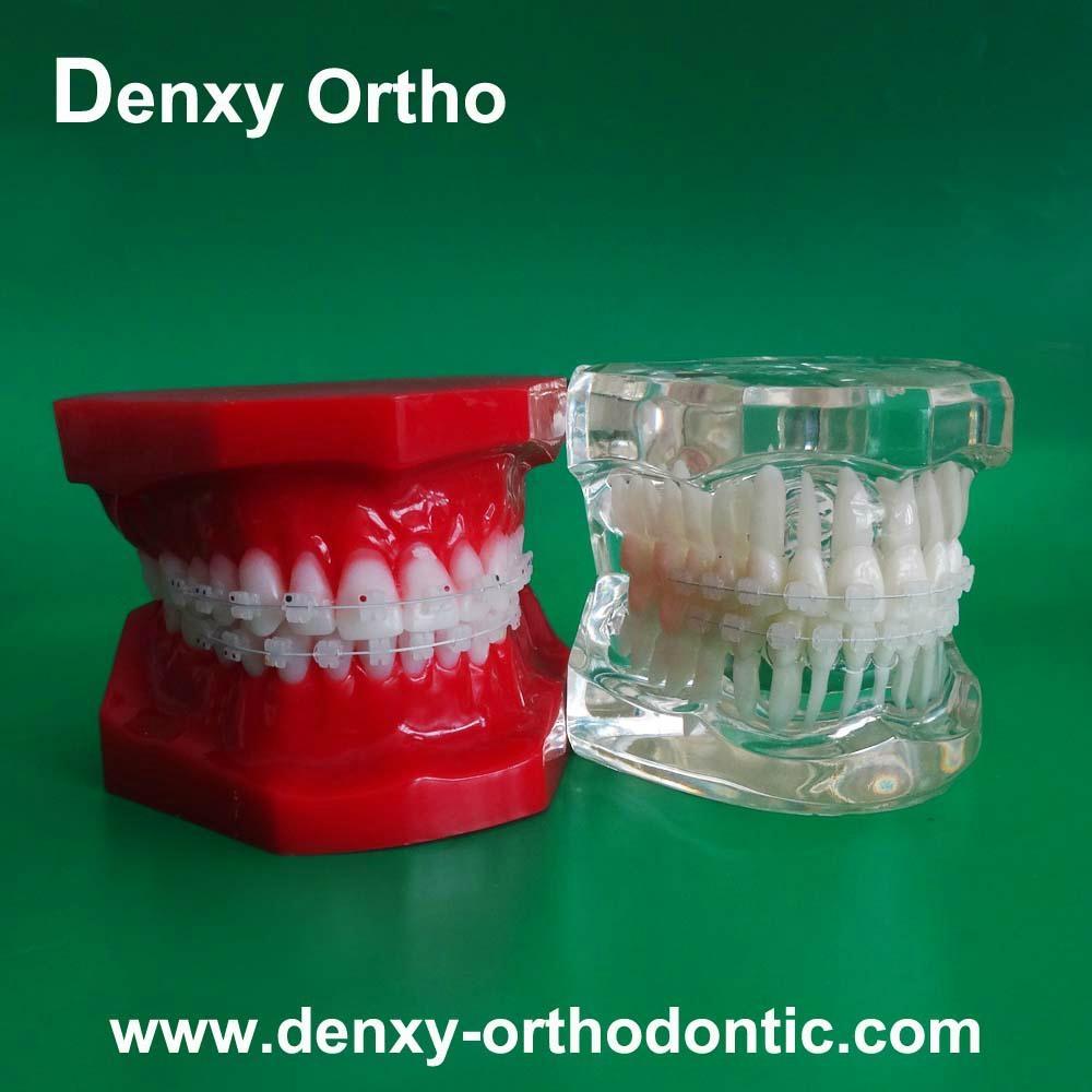 orthodontic model tooth model orthodontic braces teeth model 2