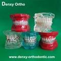 orthodontic model tooth model orthodontic braces teeth model 3