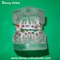 orthodontic model tooth model orthodontic braces teeth model 5