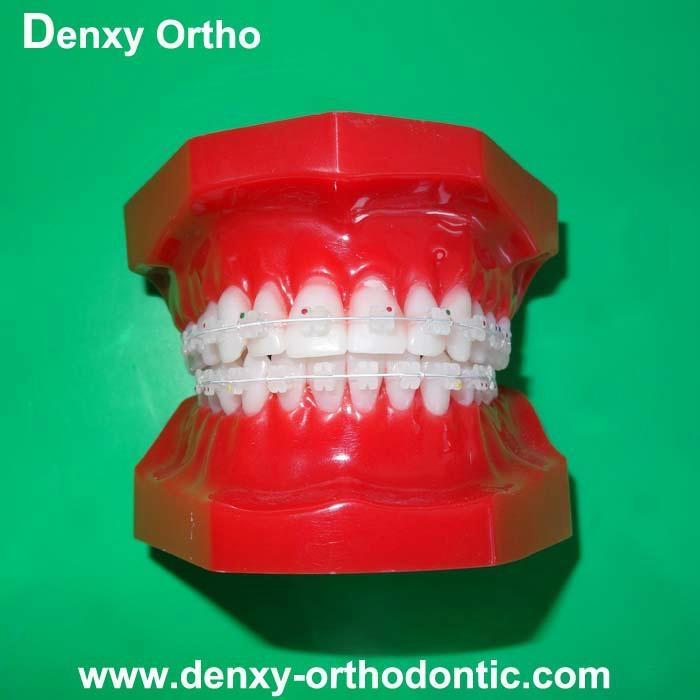 orthodontic model tooth model orthodontic braces teeth model 6