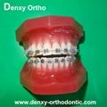 orthodontic model tooth model orthodontic braces teeth model 7
