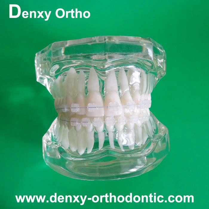orthodontic model tooth model orthodontic braces teeth model 8