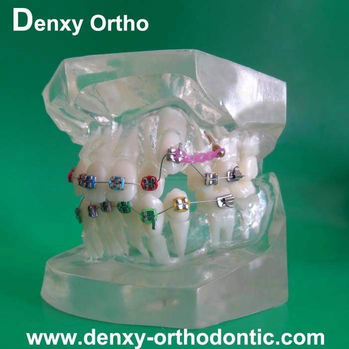 orthodontic model tooth model orthodontic braces teeth model 9