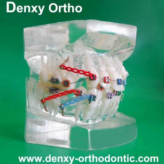 orthodontic model tooth model orthodontic braces teeth model 10