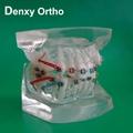 Metal bracket  model Teeth Model Dental model Orthodontic accessory
