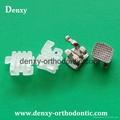 orthodontist Dental brackets Dentist