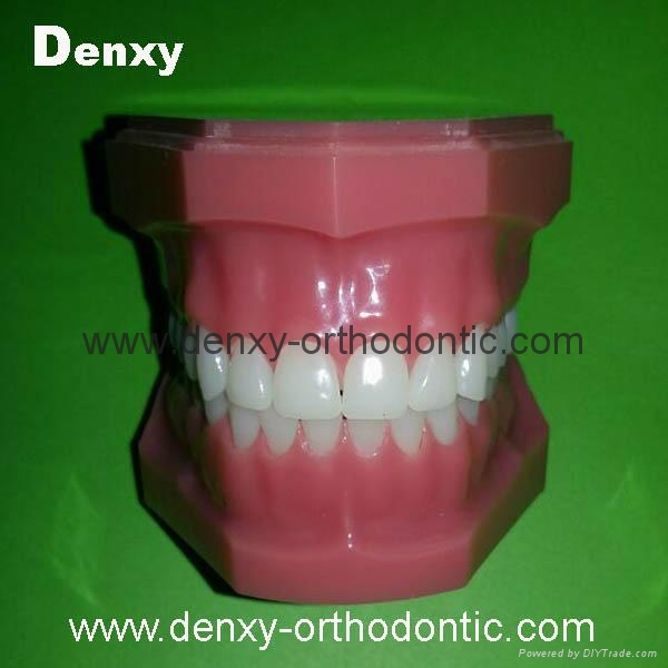dental teeth red color