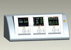 Telemetry ECG